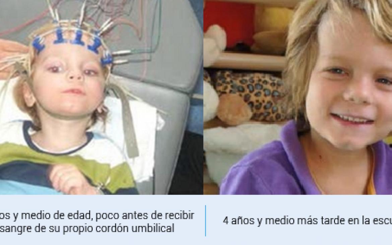 Transplante de células madre permite mejora de la parálisis de un niño de 2 años