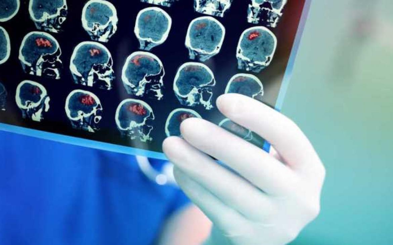 cerebro-examen